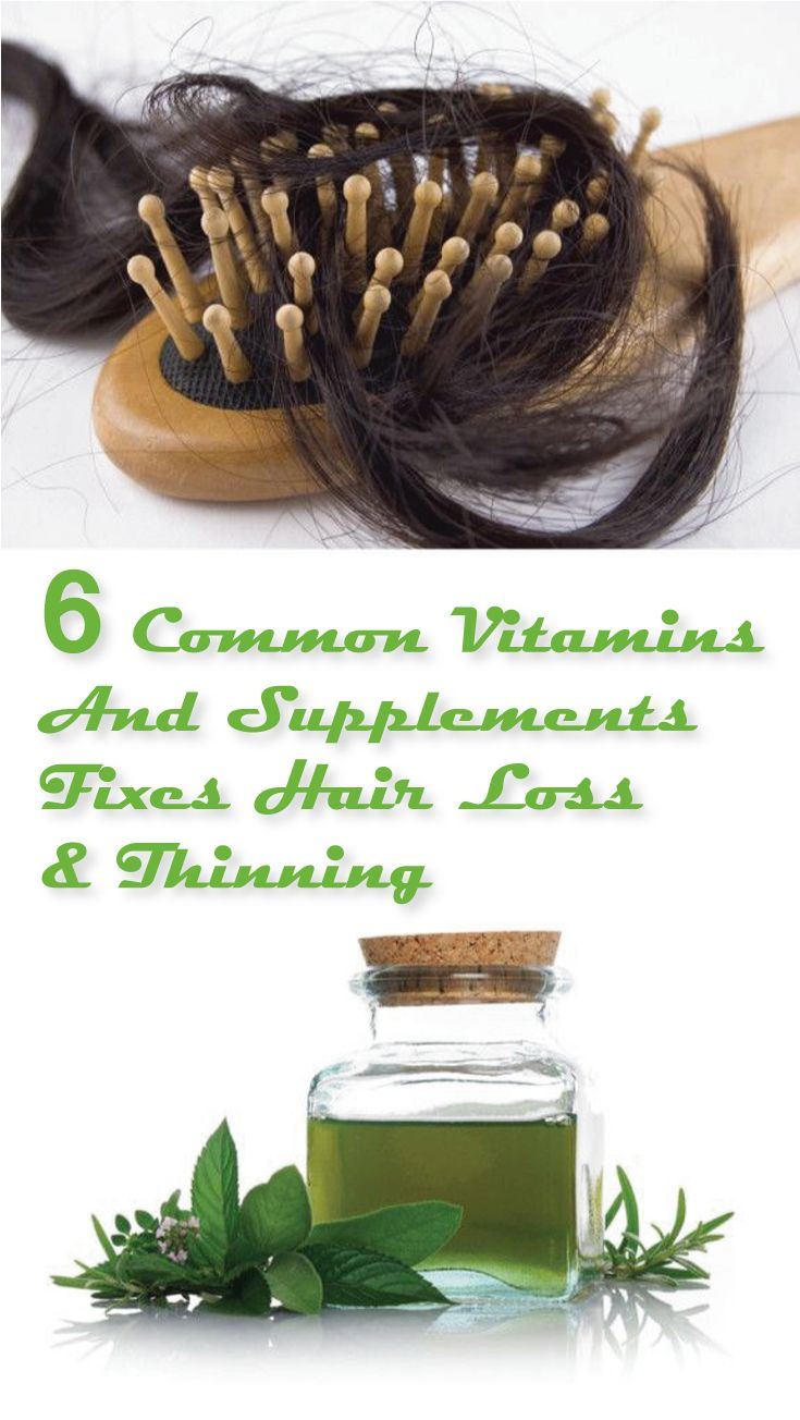 Hair loss and thinning is a general problem affecting both men and women. Loss a...