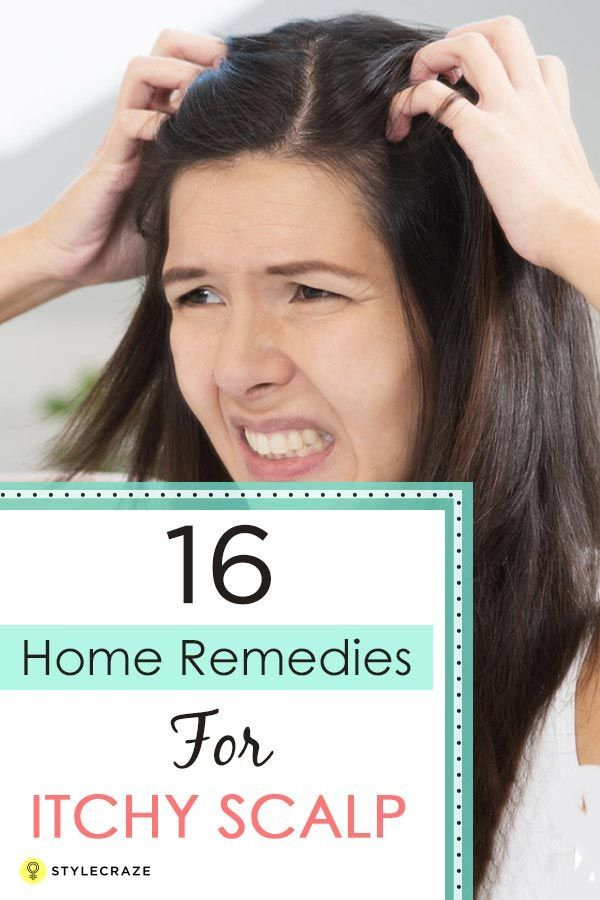 Before opting for these home remedies, make sure you check the cause of this itc...