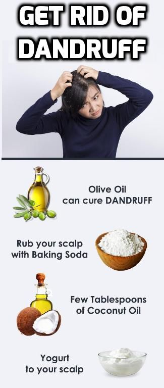 IF you have dandruff, get rid of it very simple and easy with the help of THIS V...