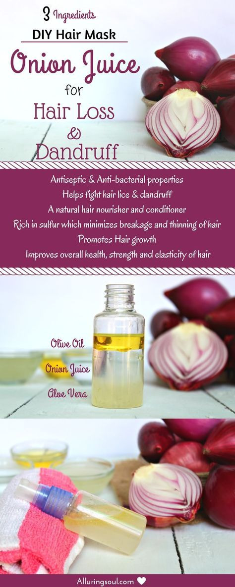 Onion Juice for hair loss and dandruff is the oldest remedy that not only streng...