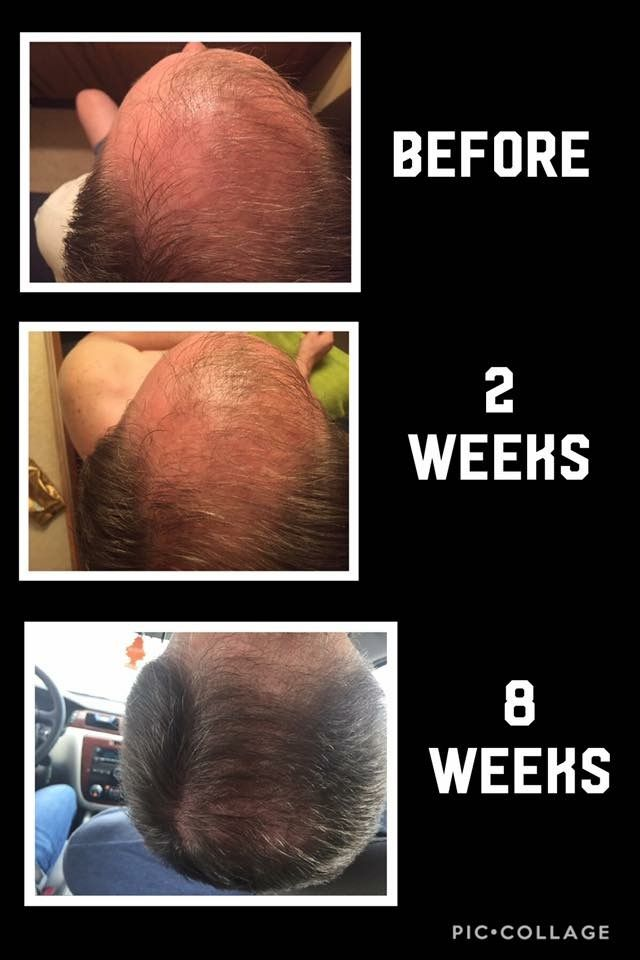 Hair Care Ideas Stop Hair Loss And Grow New Hair With Monat Black Mens Line Jpg Beauty Haircut Home Of Hairstyle Ideas Inspiration Hair Colours Haircuts Trends