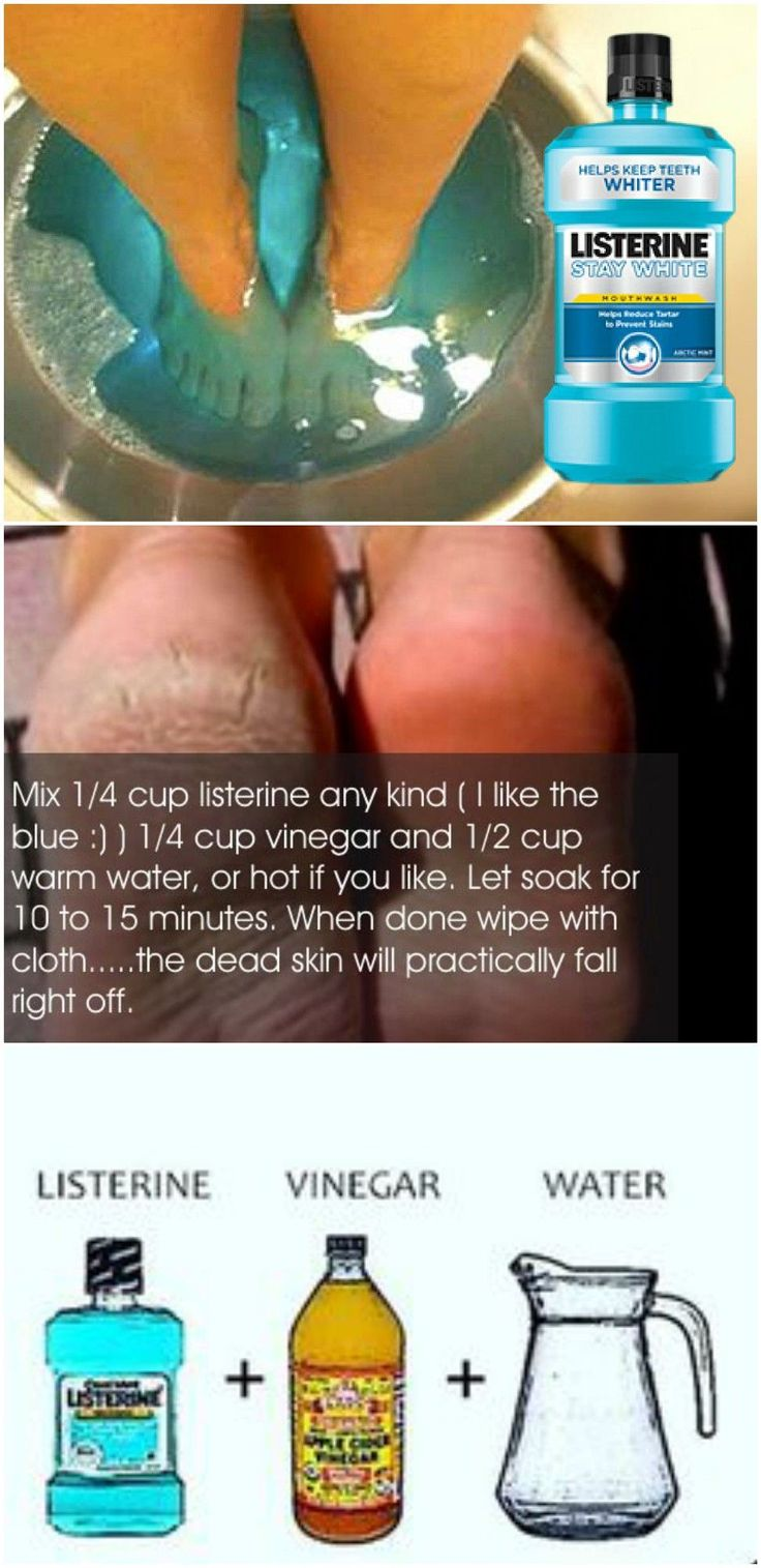 YOUR NEW MIRACLE CURE FOR DRY, CRACKED HEELS IS…MOUTHWASH!