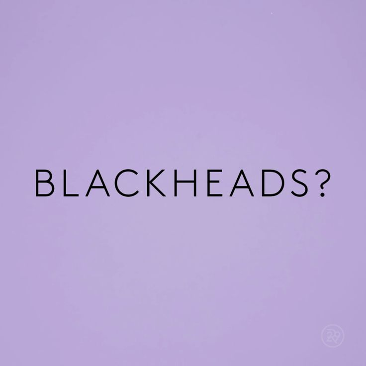 The PERFECT solution for blackheads...with stuff you probably already have at ho...