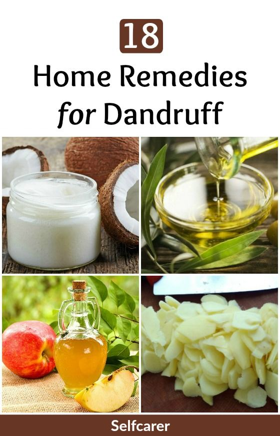 Dandruff can be controlled by following healthy hair care routine. However, it c...