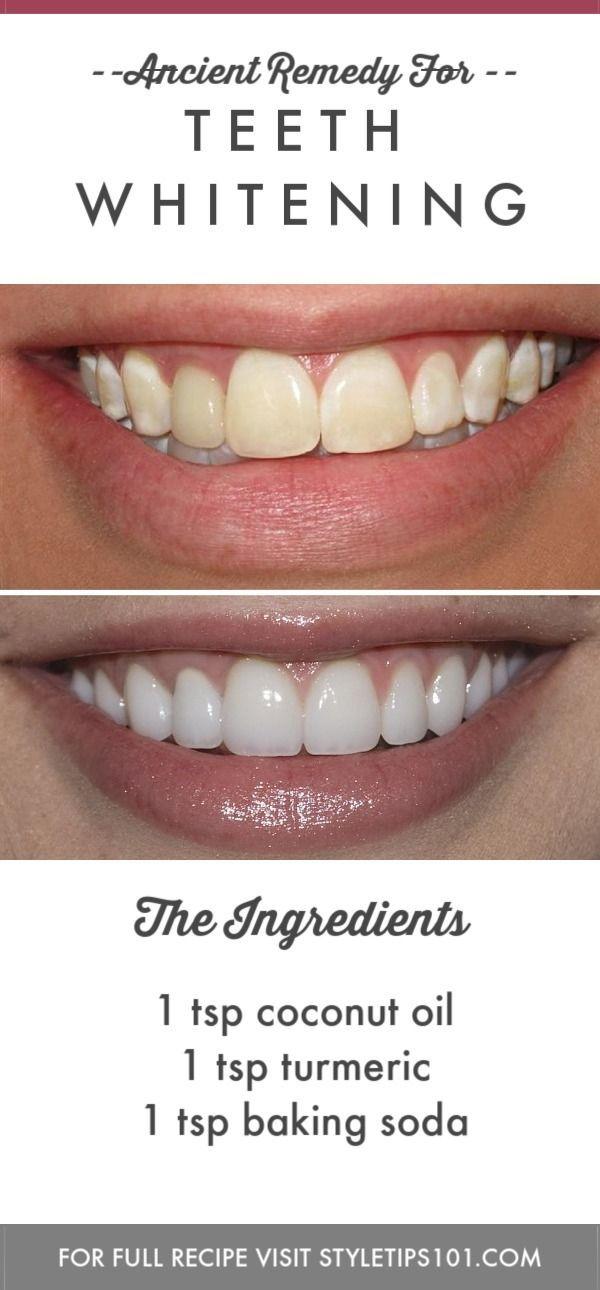 Teeth Whitening #haircarediy