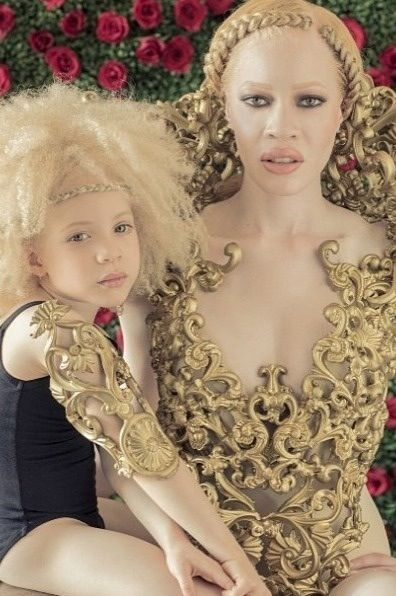 15 Albino Women And Girls with Gorgeous Natural Hair [Gallery] Read the article ...