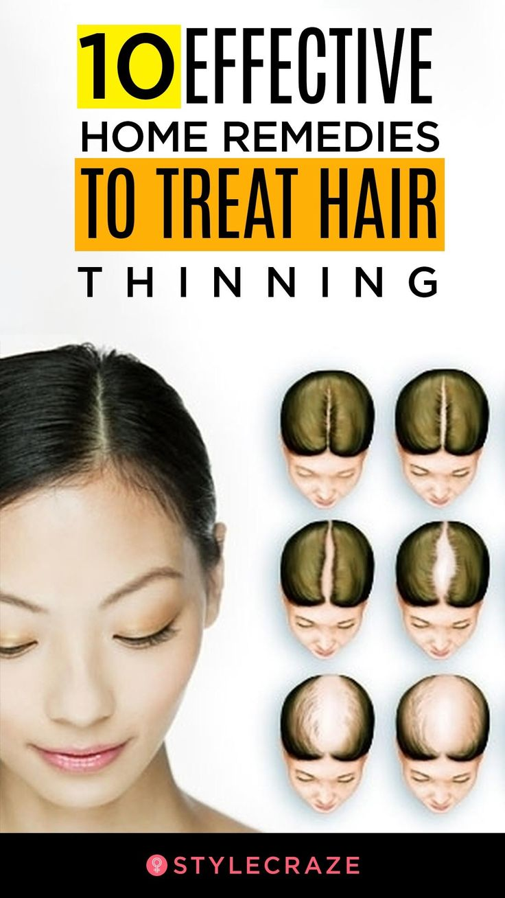 10 Effective Home Remedies To Treat Hair Thinning: Hair fall can be caused by a ...