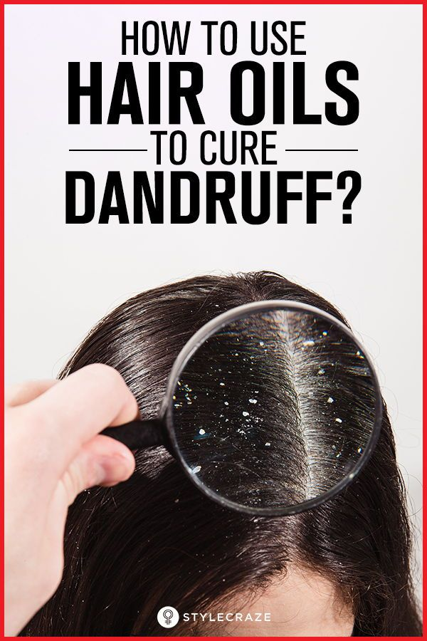 How To Use Hair Oils To Cure Dandruff: Oiling your hair, believe it or not, is o...
