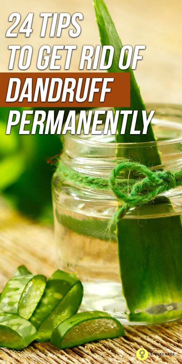 38 Natural Remedies To Get Rid Of Dandruff Permanently