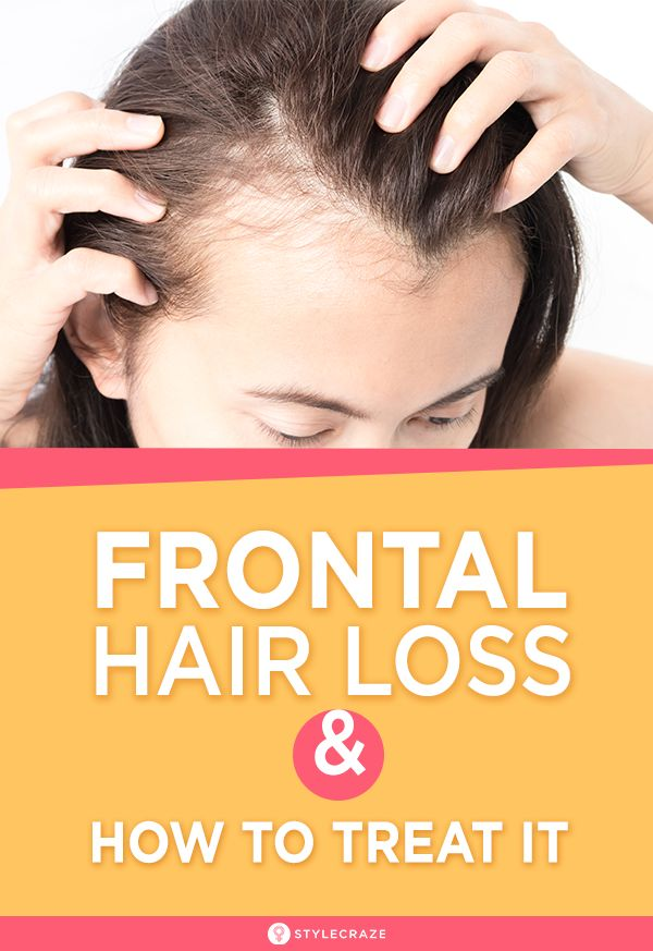 What Is Frontal Hair Loss And How To Treat It?