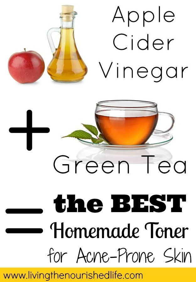 DIY Toner for Acne and Oily Skin (Just 2 Ingredients