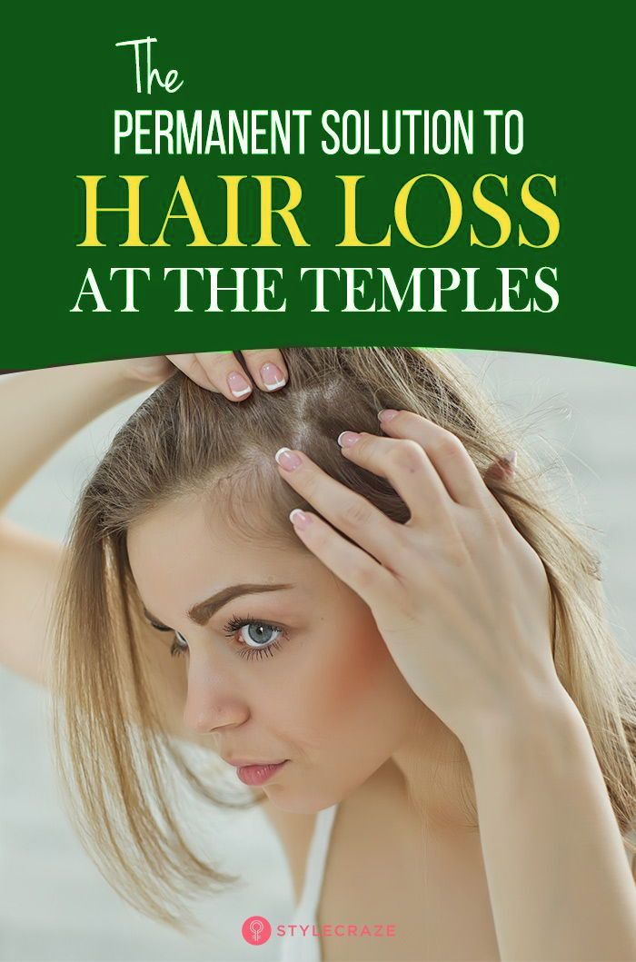 8 Simple Ways To Treat Hair Loss At The Temples